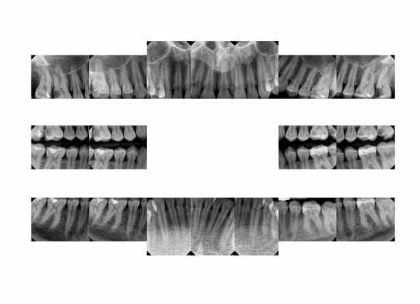 My Dental Xrays which Show Fluorosis and rampant dental decay